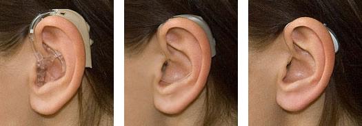 Jak działają aparaty słuchowe?