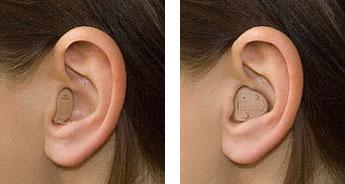 Jak działa aparat słuchowy?